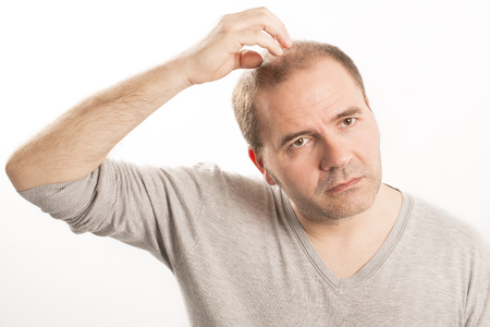 Baldness Alopecia man hair loss haircare medicine bald treatment transplantation Stock Photo