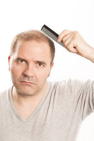 comb hair: Baldness Alopecia man hair loss haircare medicine bald treatment transplantation Stock Photo