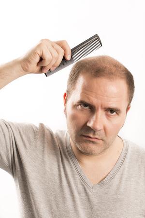 haircare: Baldness Alopecia man hair loss haircare medicine bald treatment transplantation Stock Photo
