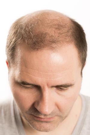 Baldness Alopecia man hair loss haircare medicine bald treatment transplantation Stockfoto