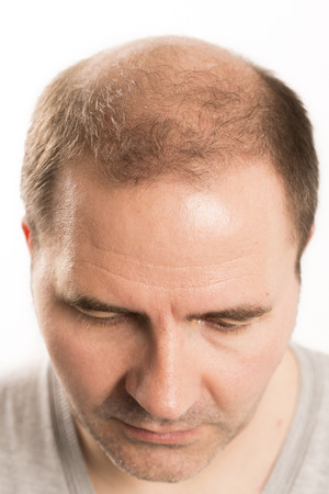 Baldness Alopecia man hair loss haircare medicine bald treatment transplantation Foto de archivo