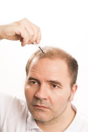 35 40: Baldness Alopecia man hair loss haircare medicine bald treatment transplantation Stock Photo