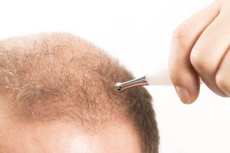 Baldness Alopecia man hair loss medicine bald treatment transplantation France Stock Photo