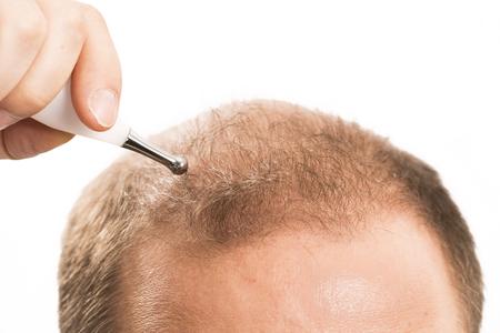 calvicie: La calvicie alopecia p�rdida de cabello hombre medicina de trasplantes tratamiento calva Francia