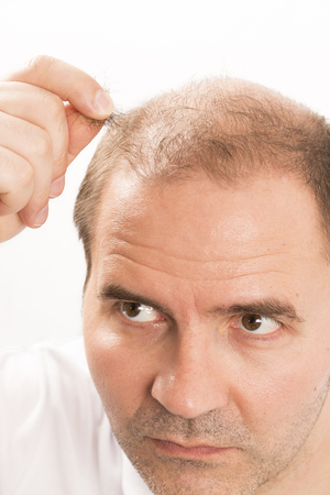 transplantation: Baldness Alopecia man hair loss medicine bald treatment transplantation France Stock Photo