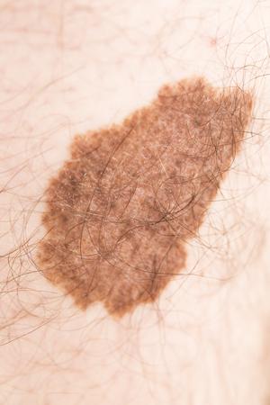 悪性黒色腫血管腫美容マーク男肌フランス上のスポット