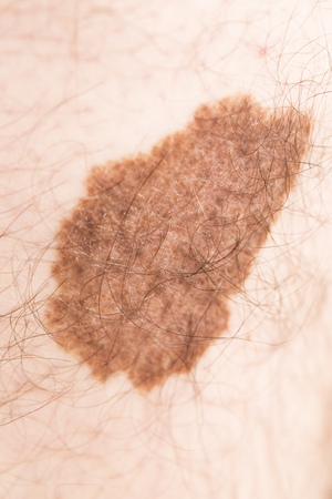 melanoma: Melanoma angioma beauty mark spot on man skin France