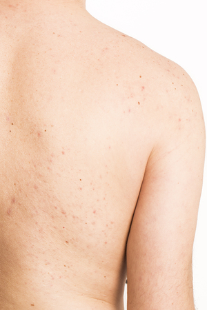 varicella: acne on mature  male back treatment infection