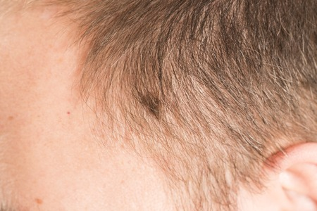 melanoma: Melanoma angioma beauty mark spot on man head face France