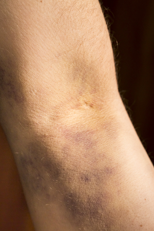 hematoma: large hematoma on human arm after blood test black background