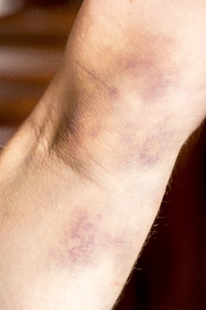 contusion: large hematoma on human arm after blood test black background