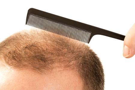 Baldness Alopecia man hair loss haircare medicine bald treatment transplantation Stock Photo