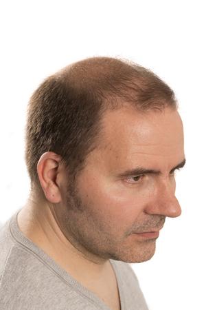 calvicie: La alopecia calvicie ca�da del cabello cuidado del cabello de la medicina hombre calvo trasplante de tratamiento