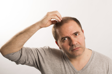 calvicie: La alopecia calvicie caída del cabello cuidado del cabello de la medicina hombre calvo trasplante de tratamiento