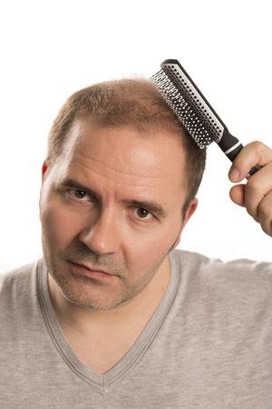 baldness: Baldness Alopecia man hair loss haircare medicine bald treatment transplantation Stock Photo