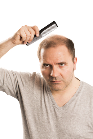 nape: Baldness Alopecia man hair loss haircare medicine bald treatment transplantation Stock Photo