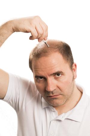 calvicie: Baldness Alopecia man hair loss haircare medicine bald treatment transplantation Foto de archivo