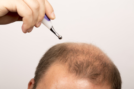 hair treatment: Baldness Alopecia man hair loss haircare medicine bald treatment transplantation Stock Photo