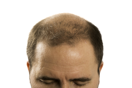 Kahlheit Alopecia Mann Haarausfall Haarpflege Medizin kahle Behandlung Transplantation Standard-Bild