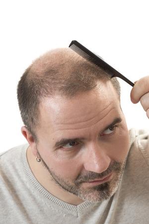 baldness: El hombre calvicie alopecia o ca�da del cabello - la mano del hombre adulto que sostiene un peine en la cabeza calva aislada