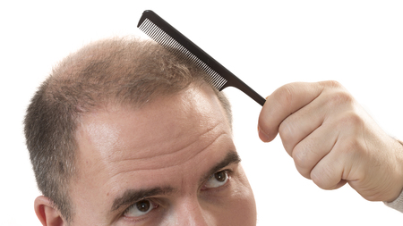 Man alopecia baldness or hair loss - adult man hand holding comb on bald head isolated Stock Photo