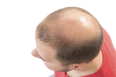 Man alopecia baldness or hair loss - Bald head close up isolated