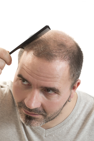 baldness: Man alopecia baldness or hair loss - adult man hand holding comb on bald head isolated Foto de archivo