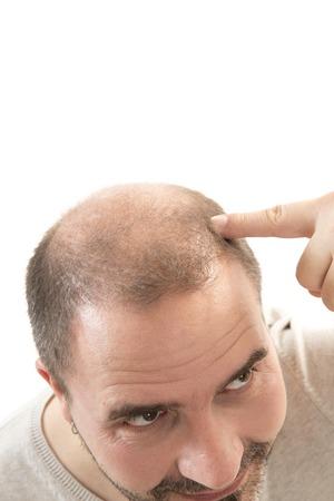 baldness: Man alopecia baldness or hair loss - Close up head treatment hand isolated