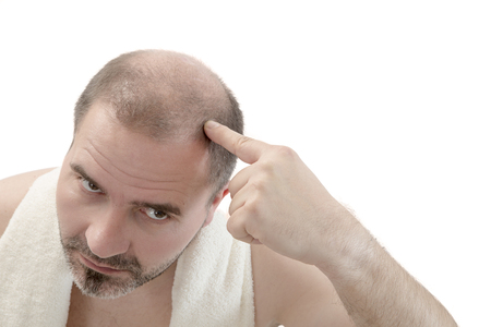 baldness: Man alopecia baldness or hair loss - Close up head treatment hand isolated