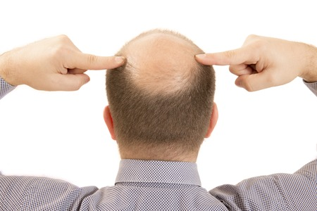 pelade: Man alopecia baldness or hair loss - Close up head two hands isolated