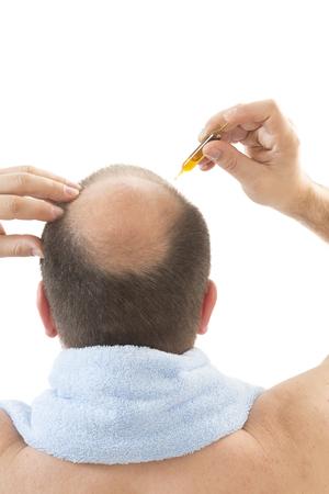 Man alopecia baldness or hair loss - Close up head treatment hand isolated