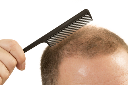 pelade: Man alopecia baldness or hair loss - adult man hand holding comb on bald head isolated Stock Photo