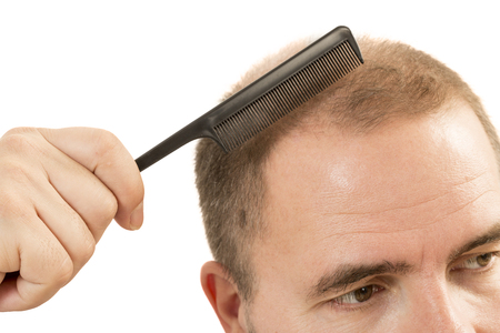 baldness: Man alopecia baldness or hair loss - adult man hand holding comb on bald head isolated Stock Photo