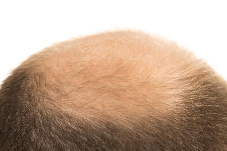 baldness: Man alopecia baldness or hair loss - Bald head close up isolated