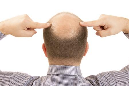 calvicie: El hombre calvicie alopecia o ca�da del cabello - Cierre de la cabeza dos manos aisladas