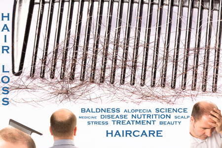 occiput: Baldness hair loss alopecia 4 pictures mixed message treatment healthcare France