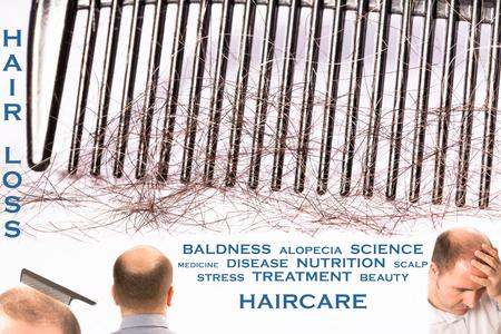 calvicie: La calvicie ca�da del cabello alopecia 4 fotos mezclado tratamiento mensaje sanitario Francia