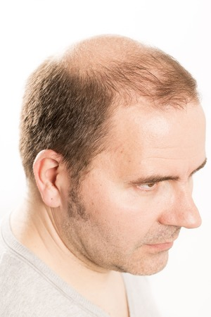 hairline: hair loss issue baldness alopecia black background