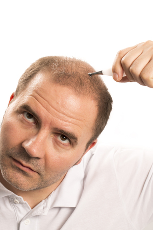 baldness: hair loss issue baldness alopecia black background