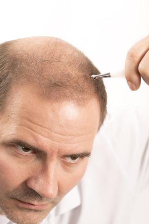 beautycare: hair loss issue baldness alopecia black background