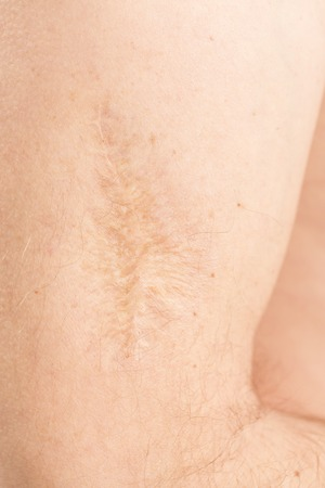 rumen: Scar after operation on arm man on white background