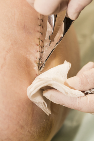 Long scar with staples fasteners and clamp on leg