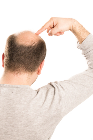 Middle-aged man concerned by hair loss bald baldness alopecia isolated Stock Photo