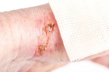 chemical burn on the wrist skin with hydroxide sodium acid. Festering and deep wound. Household accident, because of blue gloves to sharp. Sterile paraffin gauze dressing on it. Selective focus