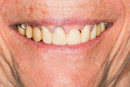 Peri-implantitis: Diseases that cause loss of bone around the dental implant, we can see the screw expose and gingival recession