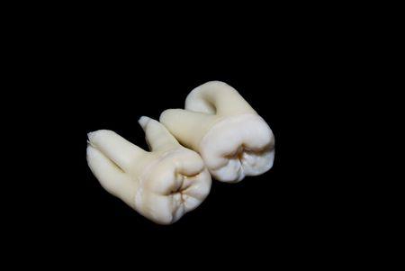 molares: dos extrajeron los dientes de sabidur�a humanos o terceros molares