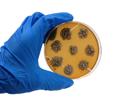 microbiologia: mano en guante azul con placa microbiol�gico aislada sobre fondo blanco Foto de archivo
