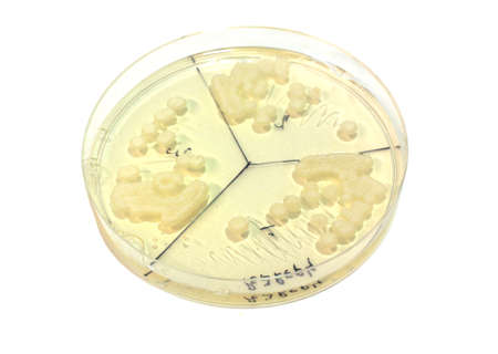 microbiological plate whith white colonies of fungi isolated on white Stock Photo - 9280046