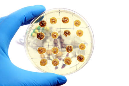 Penicillum fungi on the microbiological plate isolated Stock Photo