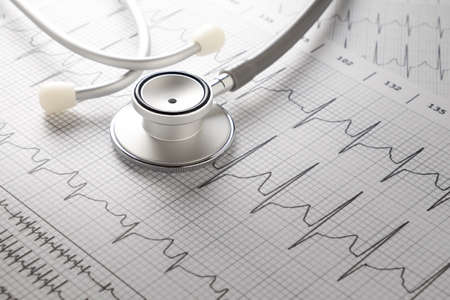 beat: Stethoscope on the ECG. medical symbolic close-up photo